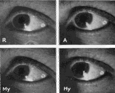 Images on the Side of the Sclera